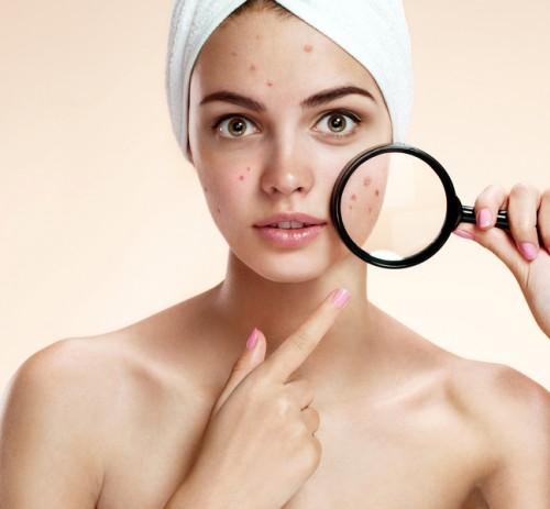 Cosmesi naturale e i vari tipi di pelle